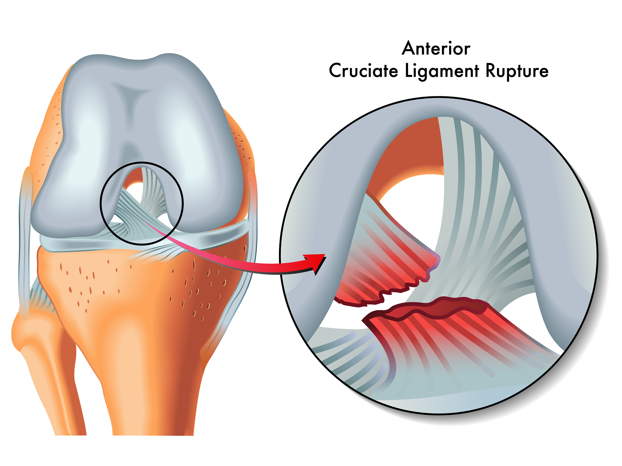 How to Recover From Anterior Cruciate Ligament Sprain – Part 2