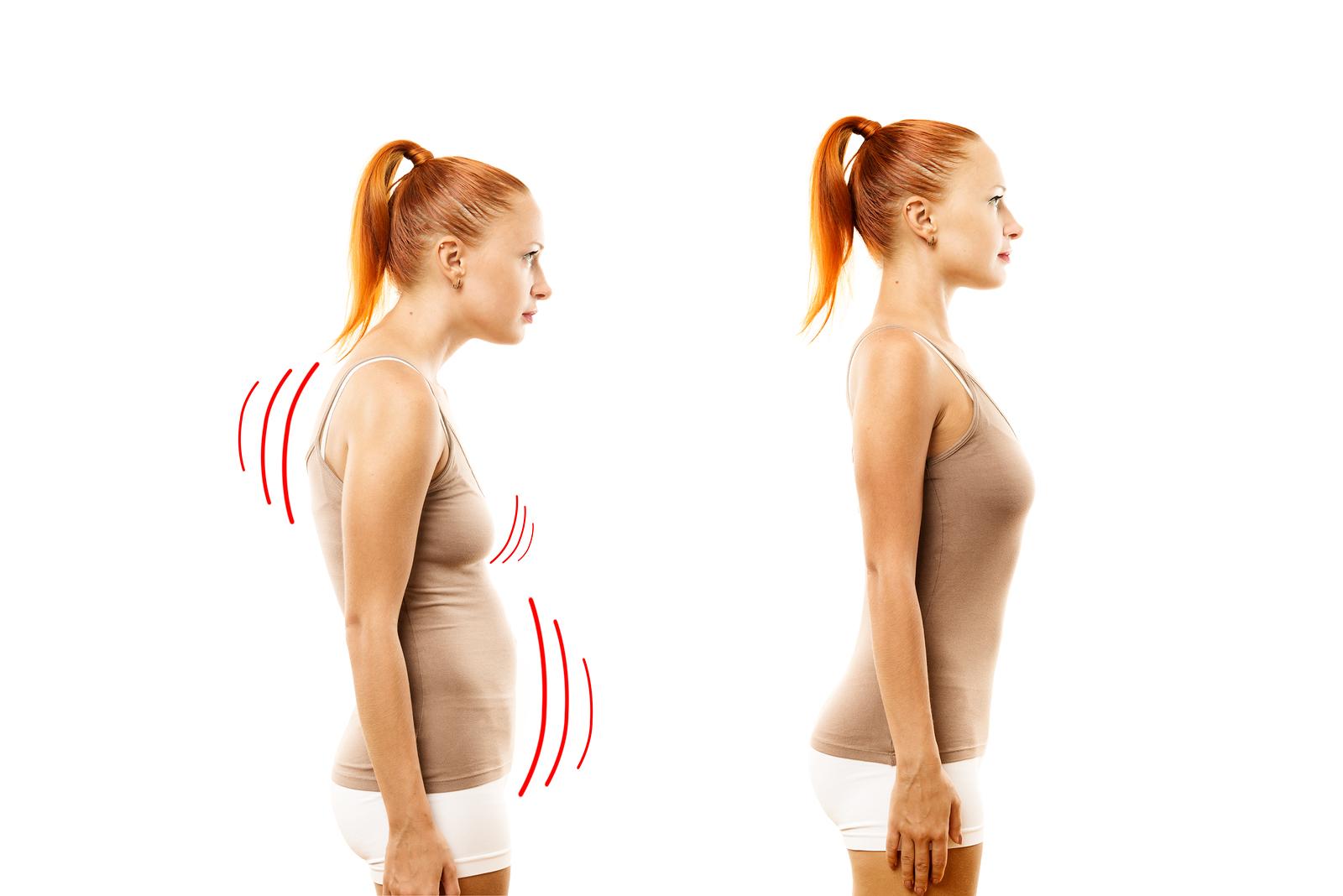 Posture & Muscle Balance